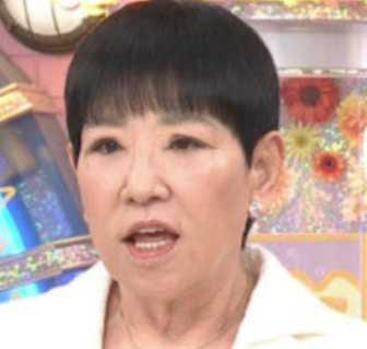 アッコさん】和田アキ子の目が変わった?原因は眼瞼下垂症?手術の